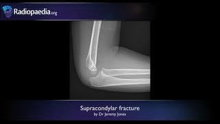 Supracondylar fracture - radiology video tutorial (x-ray)