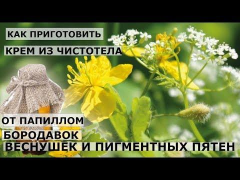 Веснушки петь караоке
