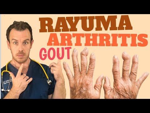 Solusyon sa Rayuma, Uric Acid, Arthritis, Gout ATBP - Doc  Adam