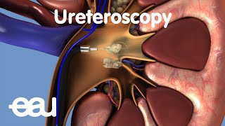 Removal of kidney stones: URS