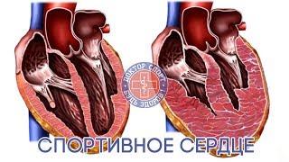 Доктор Спорт «Спортивное сердце»