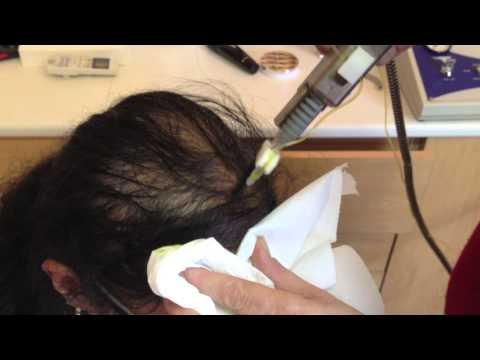 Les salles de bain sodées du traitement du psoriasis