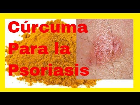 El masaje a la psoriasis es posible