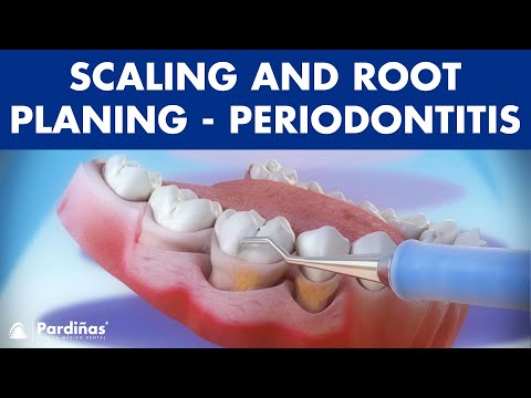 Treatment of periodontal disease - Scaling and root planing - Tartar ©