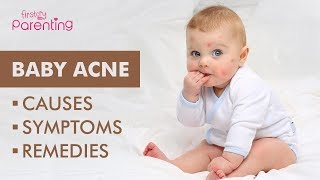 Baby Acne – Causes, Symptoms & Treatment