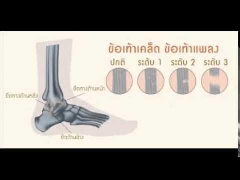 การรักษา thrombophlebitis