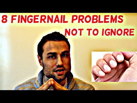 Video 8 Fingernail Problems Not To Ignore