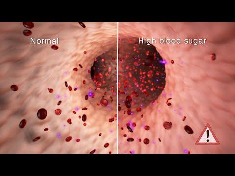 Vaistai, vartojami didelio kraujo cukraus kiekis kraujyje