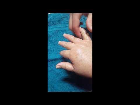 Collagene Evalar per le articolazioni