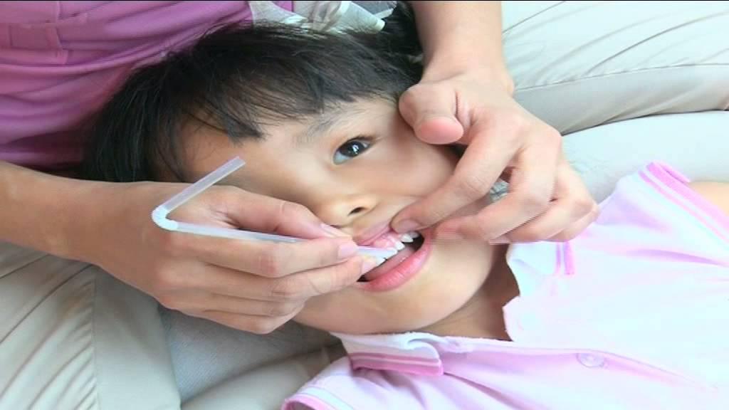 ลูกรักฟันดี เริ่มที่ซี่แรก การแปรงฟันเด็กอายุ 3 - 6 ปี