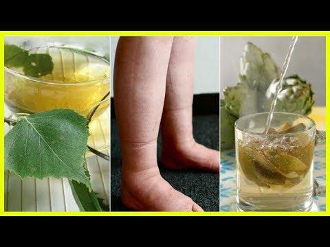Behandlung von Prostata-Krebstherapie-Methode HIFU-barnaul