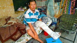 Thanh niên gãy chân nằm cầu cứu trên vỉa hè đã được phẩu thuật