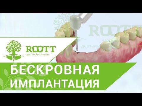 Имплантация зубов без разреза десны. 🎻 Этапы имплантации зубов без разреза десны. ROOTT.
