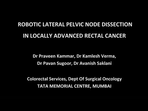 Robotic Lateral Pelvic LND for Locally Advanced Rectal Cancer
