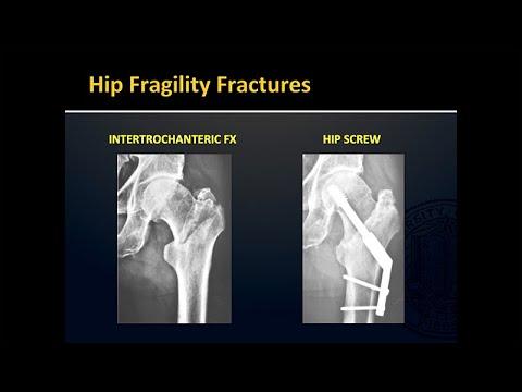 hip osteoporosis 3 fokozatú kezelés)