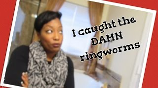 I caught the  ringworm at the gym + how I got rid of them in 2 days