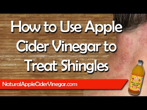 Video Apple Cider Vinegar for Shingles - Natural Home Remedy Treatment