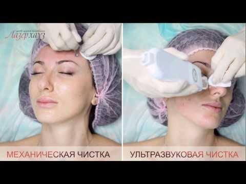 Комбинированная чистка в Лазерхауз, чистка лица, чистка от прыщей, видео, косметолог