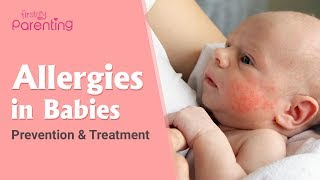 Common Allergies in Babies and How to Handle Them