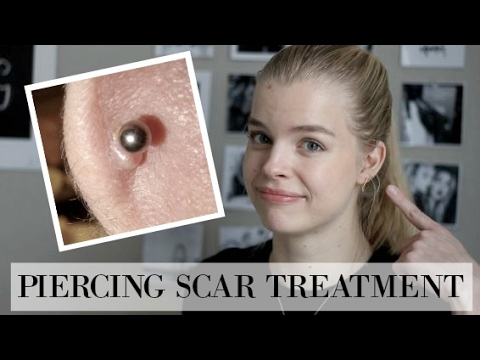 Video How to treat Hypertrophic Scars/Piercing Bumps!