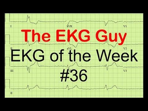 EKG of the Week #36
