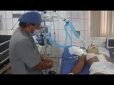 Chazova hipertensión pulmonar