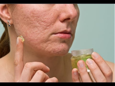 How to Stop Pimples from Growing
