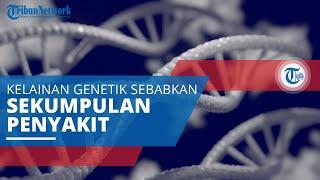 Sindrom Sjogren, Kelainan Genetik Sebabkan Gejala yang Identik dengan Mulut dan Mata Kering