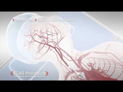 Magas vérnyomásról szóló cikk a katonai kártyáról