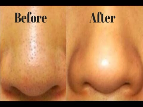 How to Shrink Large Pores on Nose Overnight - Large Pores On Nose Treatment