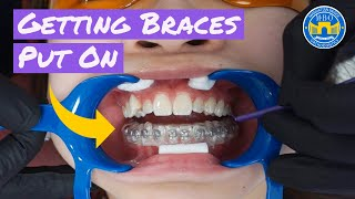 Process Of Getting Braces