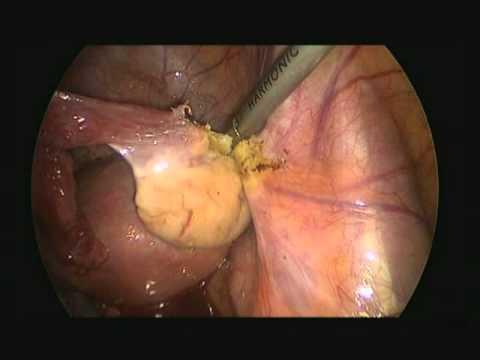 Laparoskopowa Histerektomia Z Powodu Raka Trzonu Macicy