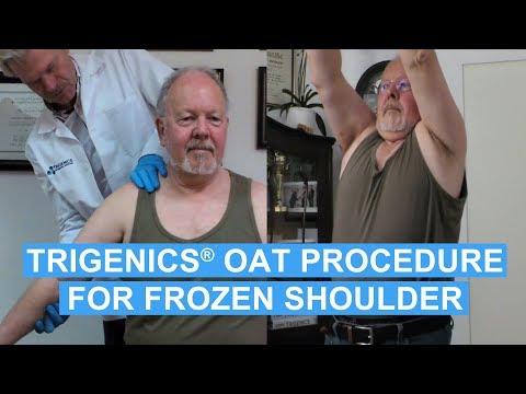 Australian Man's Frozen Shoulder Fixed By The OAT Procedure