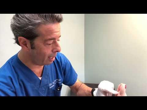 Hogyan lehet gyógyítani az ujjak ízületeinek artrózisát