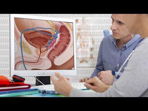 Die Auswirkungen von Prostatitis bei Männern