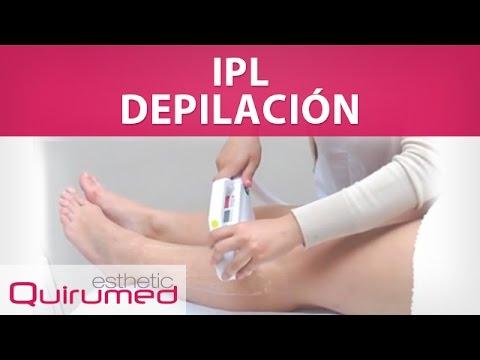 Depilación IPL