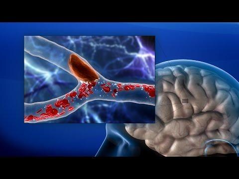 ยาสำหรับการรักษาโรคลิ่มเลือดอุดตันที่ปอดเส้นเลือด