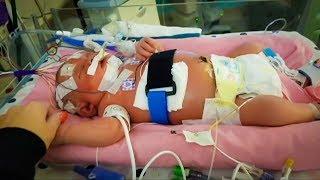 Newborn dies of meningitis from a simple kiss
