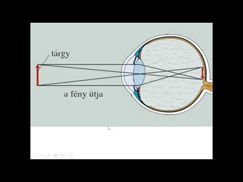 Antimon javította a látást
