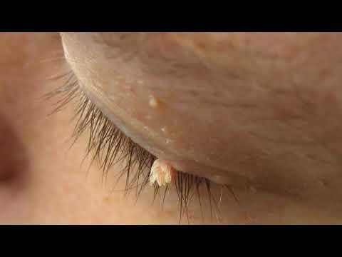 Papiloma urotelial de vejiga
