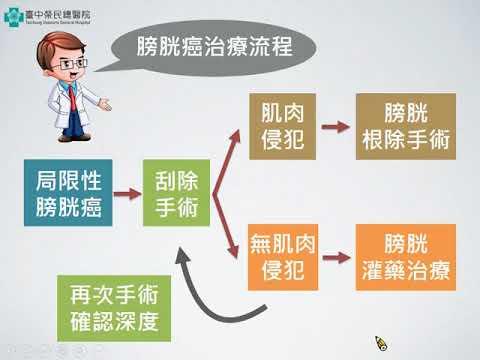膀胱癌刮除手術衛教(林嘉彥醫師)