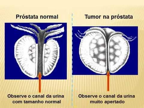 Intervento chirurgico per rimuovere il forum adenoma prostatico