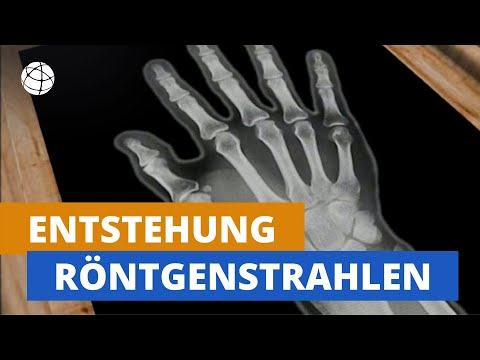 Operation an dem Hüftgelenkprothese Video