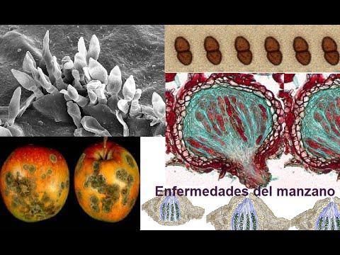 Las transmisiones sobre atopichesky la dermatitis