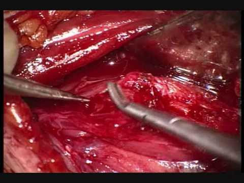 Video fisioterapia artrosi dellarticolazione del ginocchio