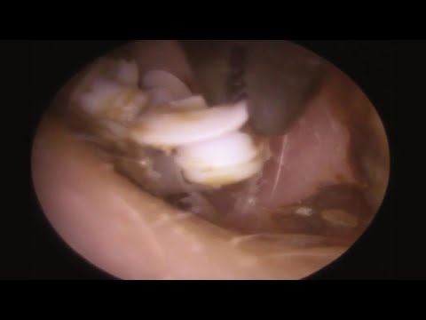 22 Hearing Aid Filters Found in Man's Ear?!