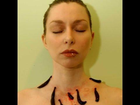 Warikos die Symptome bei den Frauen des Fotos die Behandlung
