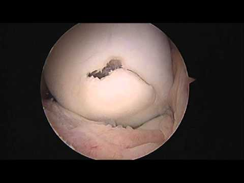 Surgical Correction of Osteochondritis Dissecans (OCD) of the Knee