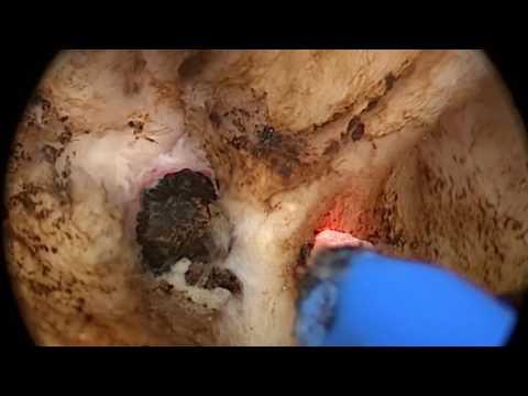 Un intervento chirurgico per rimuovere la prostata vescicole seminali