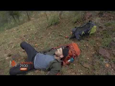 Les astérisques vasculeux sur les pieds léloignement à novosibirske
